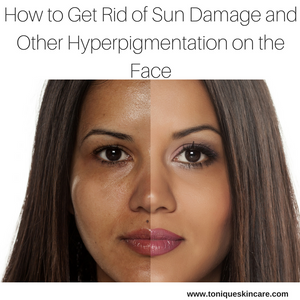 How to Get Rid of Sun Damage and Other Hyperpigmentation on the Face