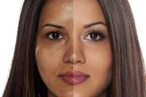 split screen of woman with blotchy and even toned skin