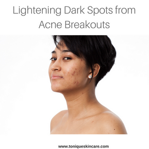 lightening dark spots article image