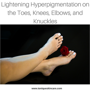 lightening hyperpigmentation body stubborn