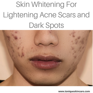lightening acne scars and dark spots