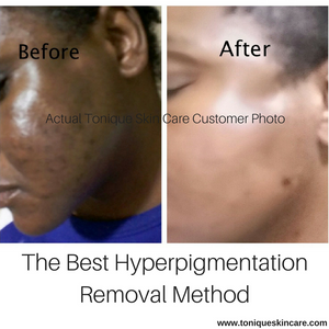 The Best Hyperpigmentation Removal Method