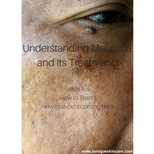 Understanding Melasma and Its Treatment