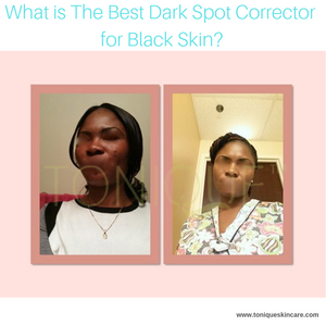 What is The Best Dark Spot Corrector for Black Skin?