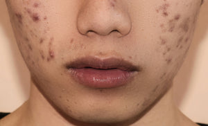 How to Remove Dark Spots Caused By Pimples