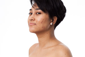 Dark Spot Removal Using Natural Skin Lightening Products
