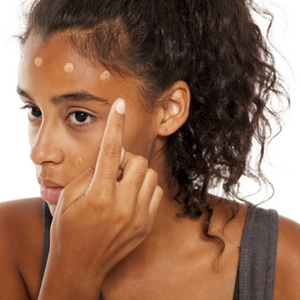 The Fastest and Easiest Way to Treat Dark Spots