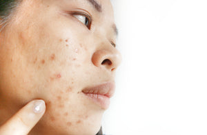 woman with dark spots