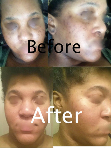Tonique customer before and after photo