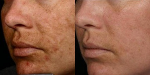 acne breakout before and after