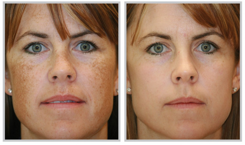 Melasma Removal Picture