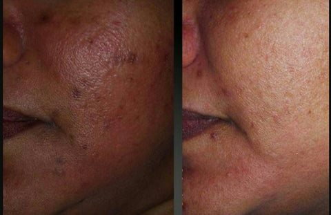 Tonique skin care customer before and after