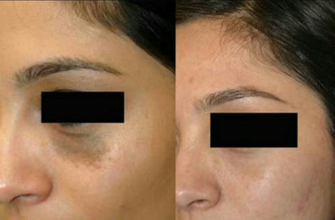 Tonique customer before and after dark circles