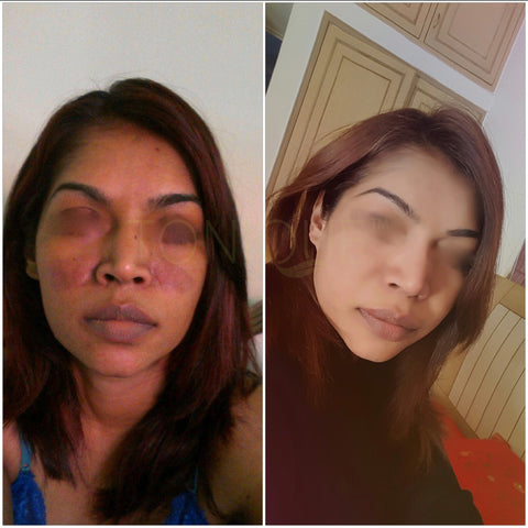 Tonique customer before and after