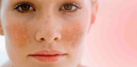 Freckles and Birthmark on Face
