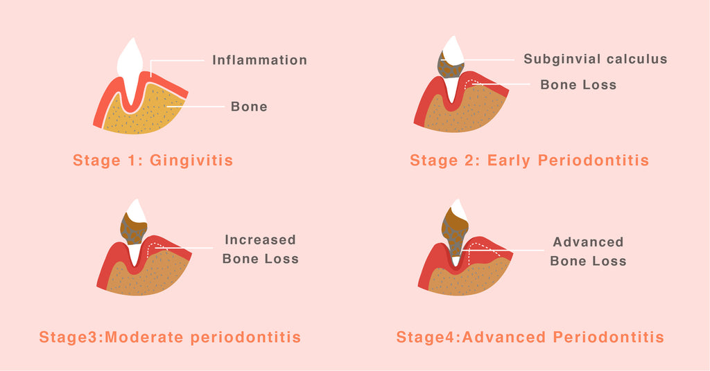 dog-periodontal-disease-stage