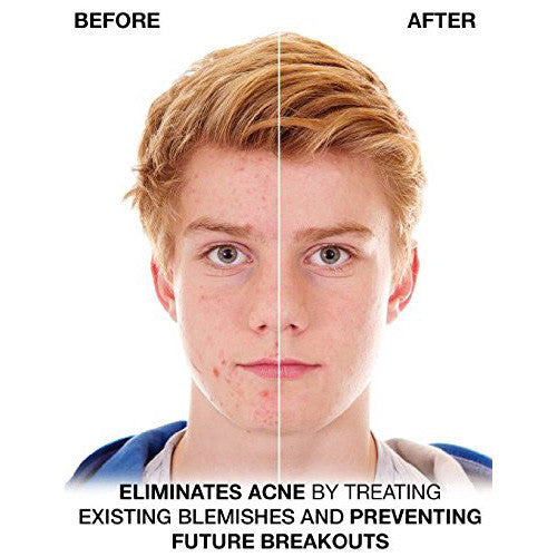 Acne Face & Body Wash (Benzoyl Peroxide 5%)