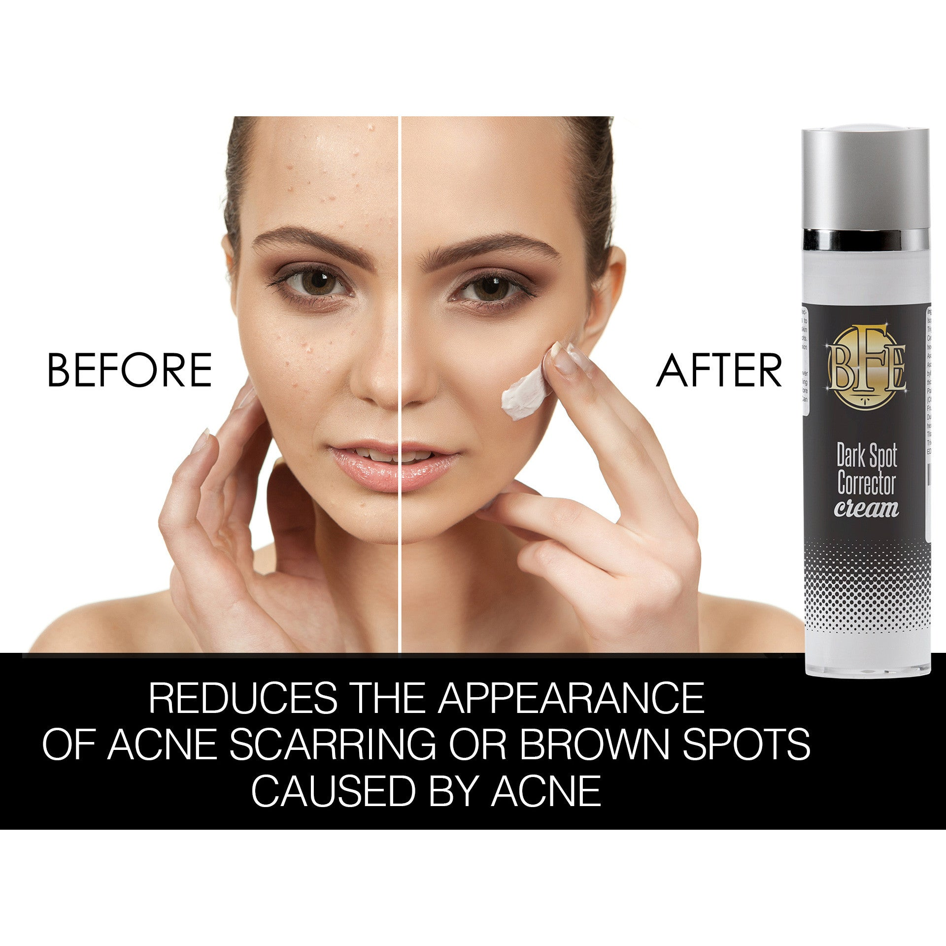 cream for age spots on face