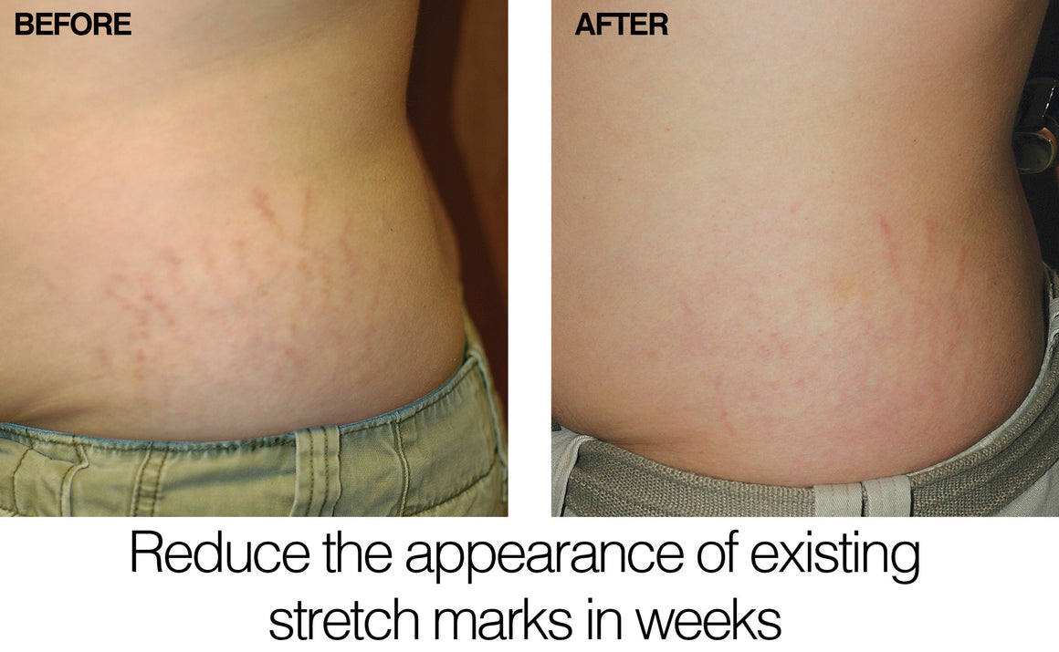 Stretch Mark Repair Cream
