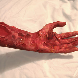 3rd Degree Burn Inspired Special FX Makeup by Caroline Healy