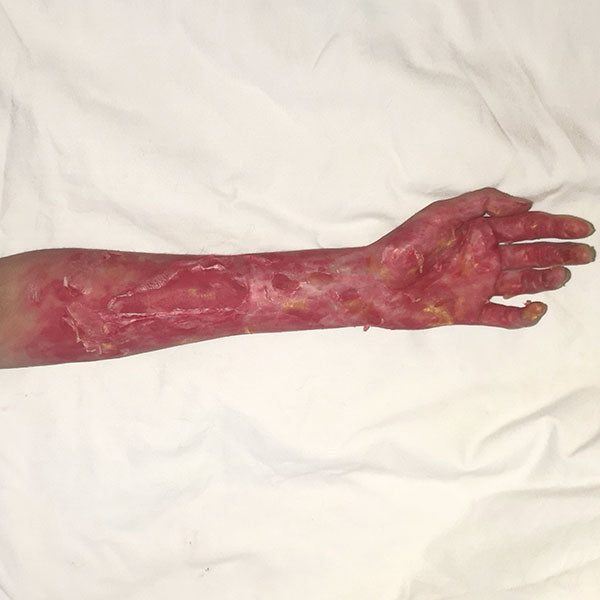 3rd Degree Burn Inspired Special FX Makeup 3