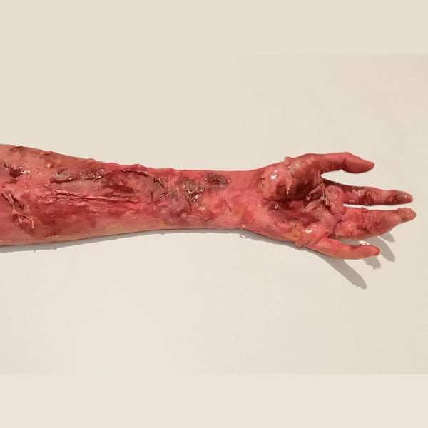 3rd Degree Burn Inspired Special FX Makeup 5