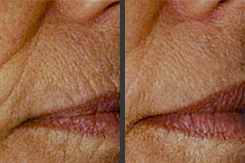 How to Maintain Your AngelLift Dermastrips Line Lifting Results