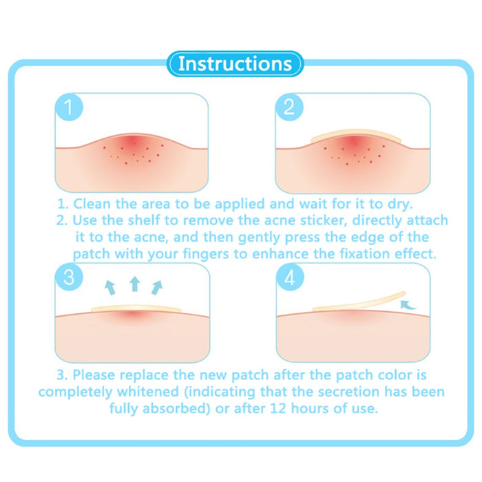 Acne Pimple Master Patch - 24 Patches - Toyzor.com