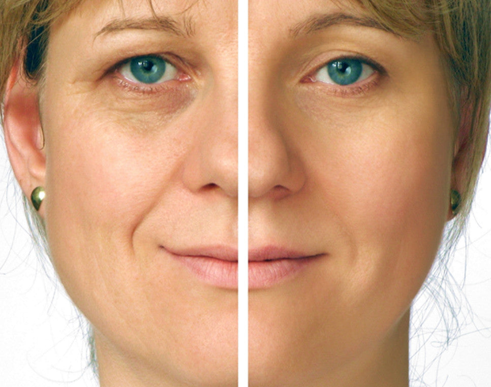 Dramatically Relax Facial Tension And Muscle Contractions Botox