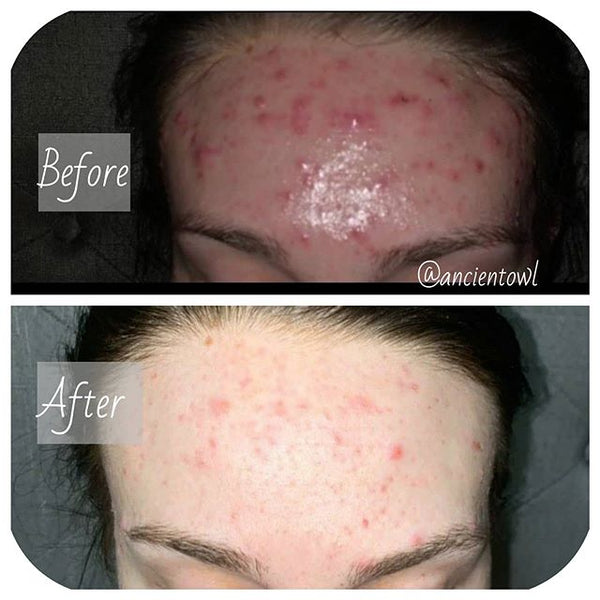Postpartum Acne