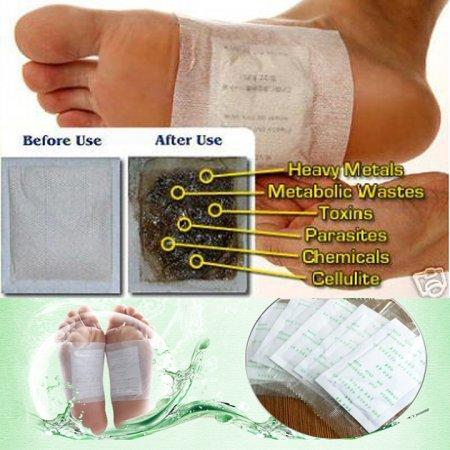 Kinoki Detox Foot Patches