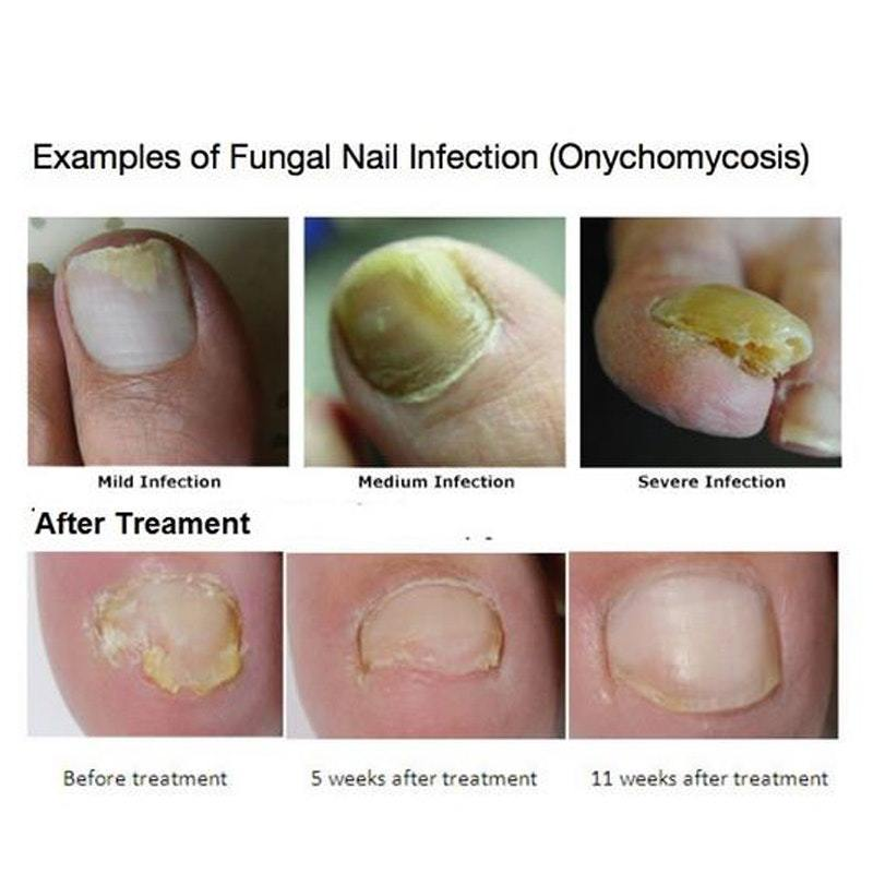 Fungal Nail Repair Essence – Picqued