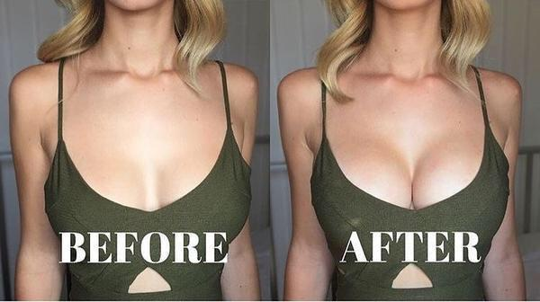 Adhesive Shaping Bra Wings