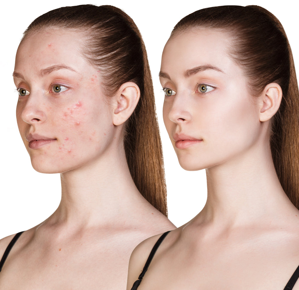 How Can I Keep Acne Breakouts from Happening?