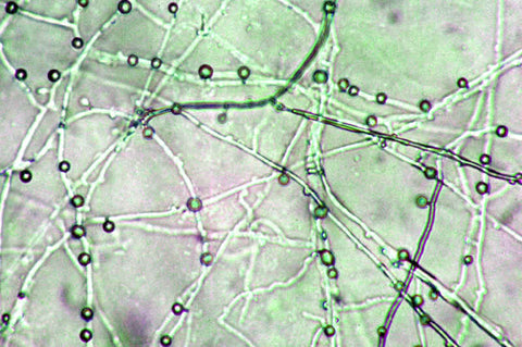 "A microscopic view of Pleurotus (Oyster mushroom) mycelium, exhibiting the ""hyphae"" blobs which attract, immobilize and invade nematodes, enabling the mushroom to both avoid predation and find the nitrogen it needs to survive in hardwood."