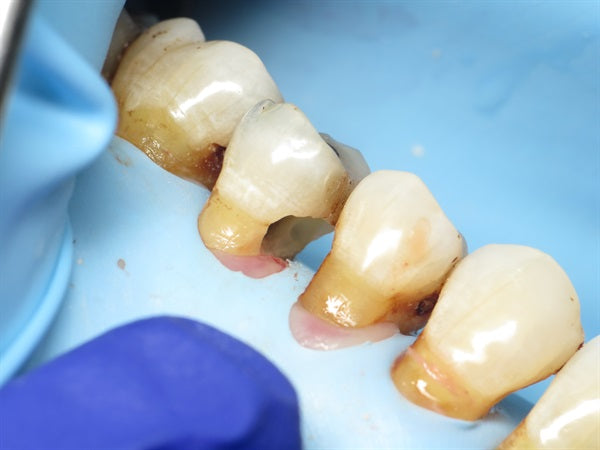 A method to restore root caries
