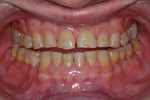 Full upper arch composite rehab 8 years later