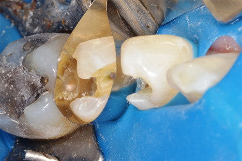 Using Occlusal Stamping with the Greater Curve