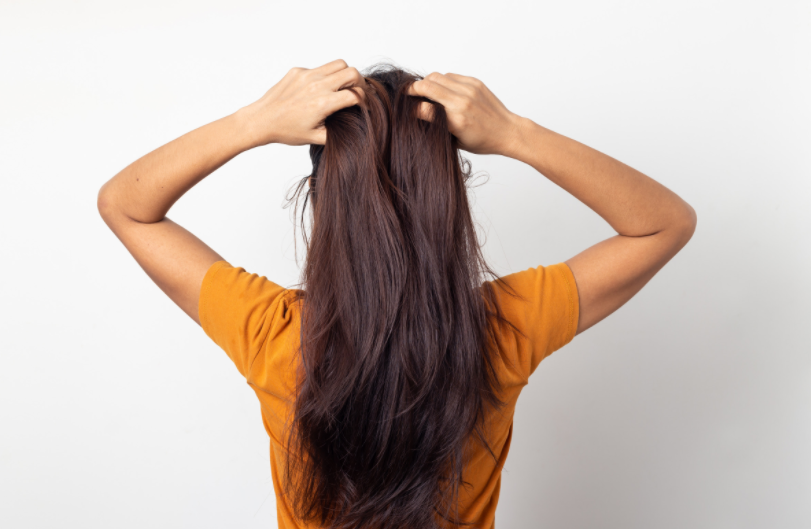 Why You Have Dandruff And How To Fix It Naturally