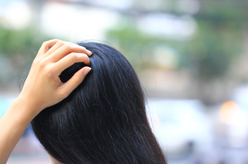 How To Get Rid Of Itchy Scalp