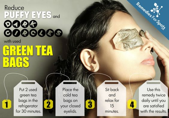 green teabags under eyes beauty hack