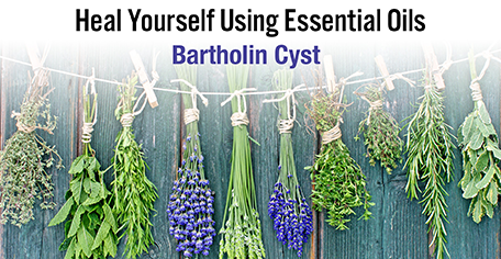 Heal Yourself Using Essential Oils - Bartholin Cyst - KG Stiles, Instructor BA, CBT, CBP, LMT - SAVE 20% OFF!-Consulting & Tutorial Programs-PurePlant Essentials