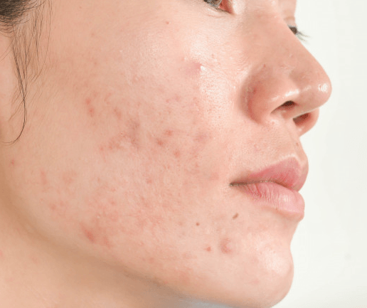 Clear and Nourish Acne Prone Skin
