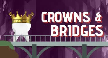 Crowns and Bridges