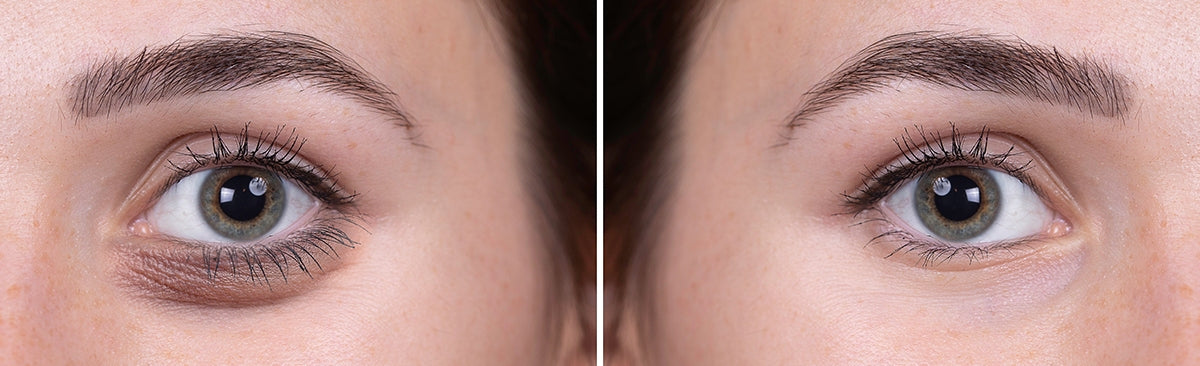 treatments to improve tear trough, dark undereye circles, eyebags - BeautyAcademyHK