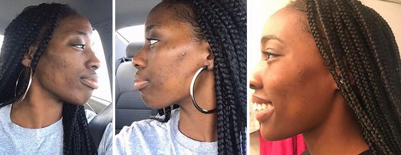 Skin Transformation Story: Kaedi Bowers