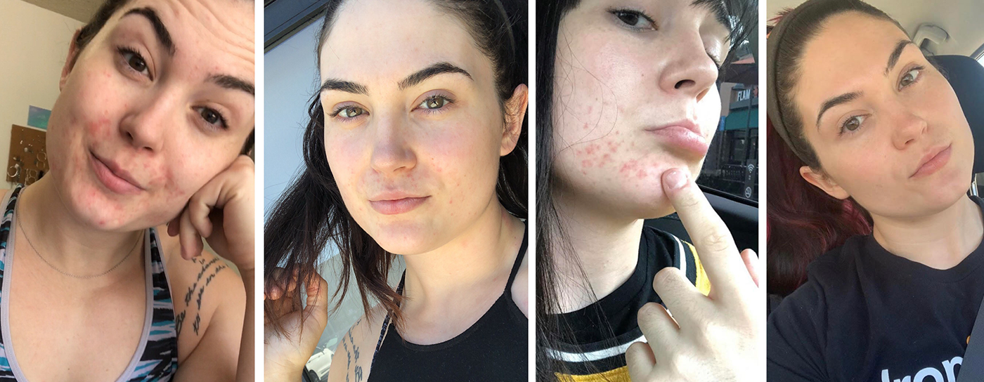 Skin Transformation Story: Ciarra Hutton