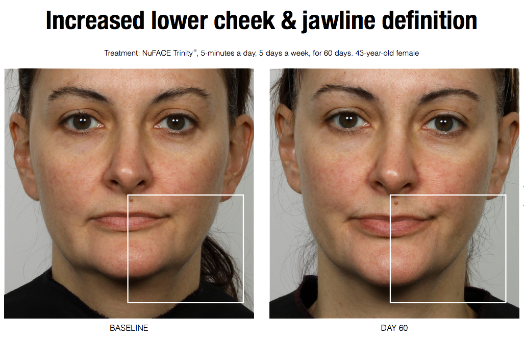 ENGAGE CLINICAL STUDY, A SINGLE CENTER, NON RANDOMIZED, SINGLE ARM TRIAL TO  EVALUATE THE EFFICACY OF THE NuFACE TRINITY DEVICE WITH NuFACE TRINITY  FACIAL ...