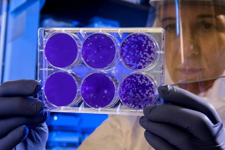 woman wearing personal protective gear holding Petri dishes of bacterial culture