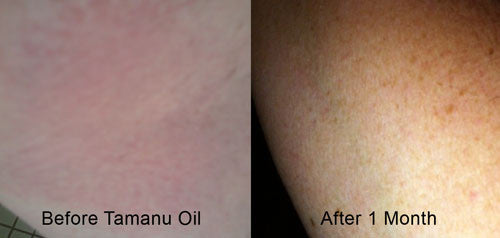 Tamanu Oil working on Eczema - Before and After 1 Month